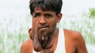 Человек-слон из Индии - Моя Ужасная История