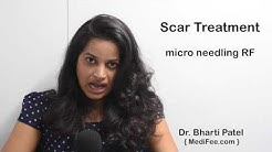 hqdefault - Cost Of Laser Scar Removal Acne
