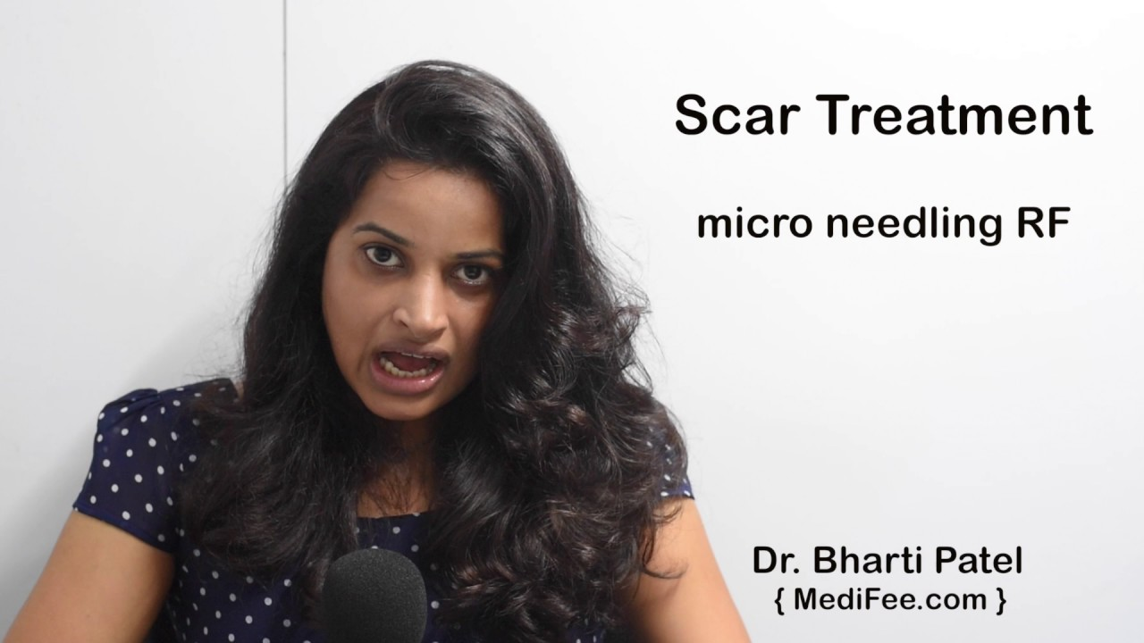 Treatment For Scars Types Causes And Cost In India Youtube