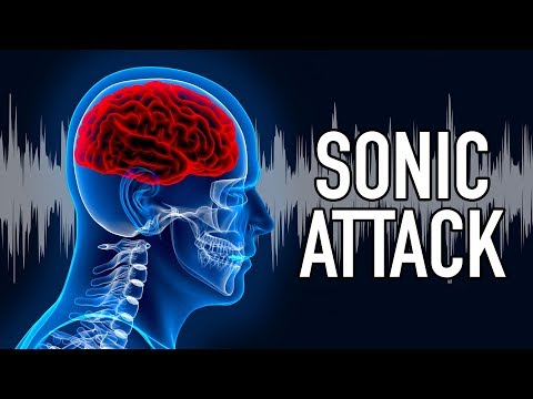 SONIC ATTACK on US Diplomat