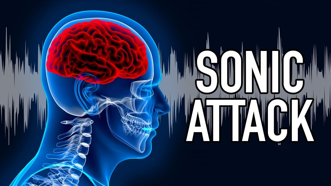 American Suffers 20 Brain Injuries in 'Sonic Attack'