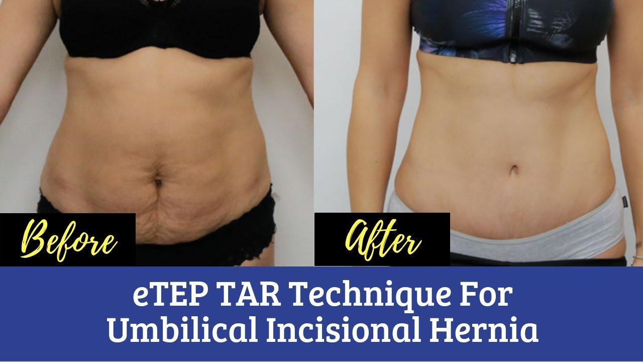 Best Hernia Surgery in Kolkata   eTEP TAR Technique For Umbilical  Incisional Hernia