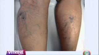 Tratamento em mumbai de para melhor varizes médico