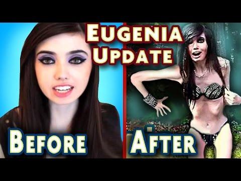eugenia cooney has anorexia