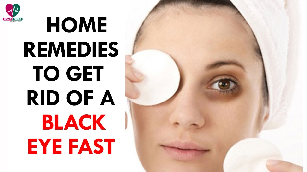 Home Remedies to Get Rid of a Black Eye Fast - Health ...