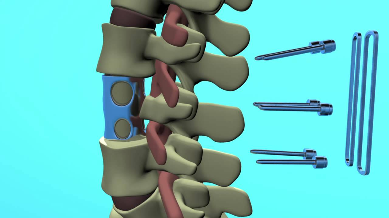 Spinal Animation Vertebral Body Replacement Surgery Ivan Moe Youtube