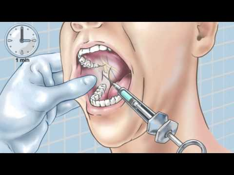 Standard Inferior Alveolar Nerve Block - YouTube