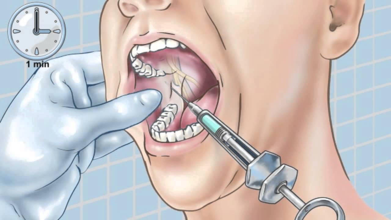 Dental Nerve Block
