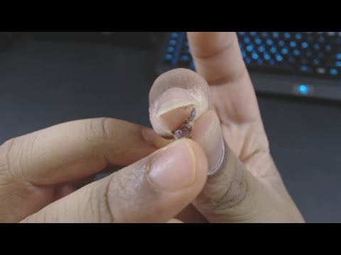 Removing Dead Infected Skin From Finger