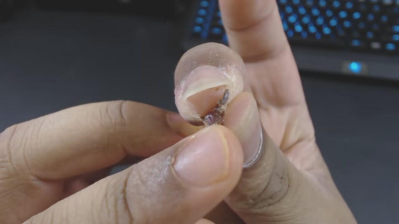 Removing Dead Infected Skin From Finger - YouTube