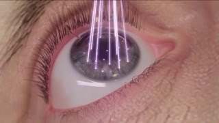WaveLight LASIK Step 4: Contouring the Surface of the Eye