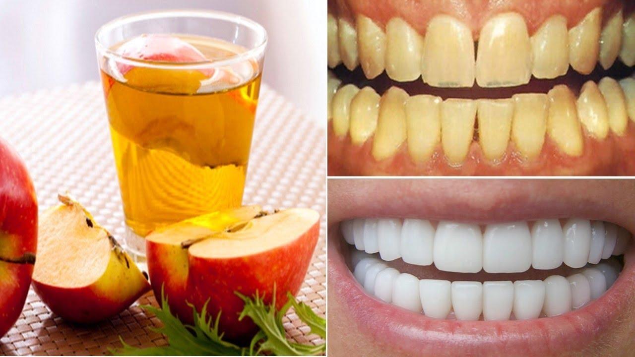Hanya 2 Menit Cara Membuat Gigi Kuning Jadi Putih Bersih Kembali