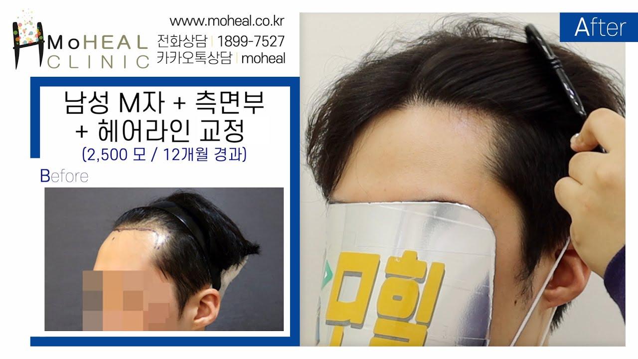 [모힐TV] 👨🏻🦲남성 모발이식 / 2,500모 M자 + 측면부 + 헤어라인 교정 12개월 경과💆🏻♂️