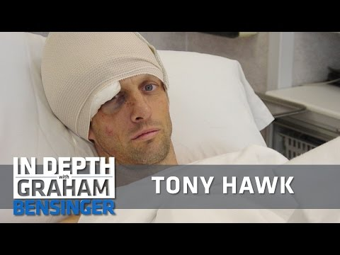 Tony Hawk: My worst, life-threatening wipeout