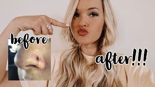 HOW TO GET RID OF YOUR NOSE RING BUMP! (nose ring keloid)