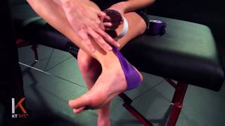 KT Tape: Posterior Shin Splints