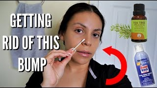 How To Get Rid Of Nose Piercing Bump, Mini Haul, + GIVEAWAY! | JuicyJas