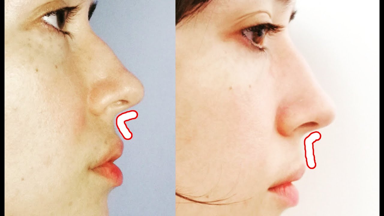 Get a shorter and curved philtrum with this face exercise