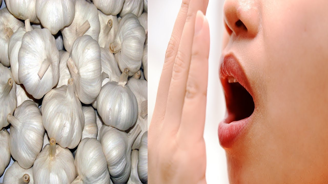 Why you shouldn't put garlic in your vagina to treat a yeast infection