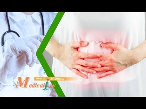 Синдром раздраженного кишечника (СРК). Какие симптомы? Как определить? Как лечить?