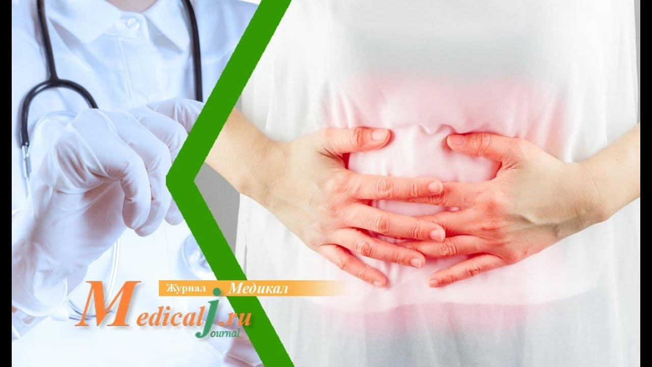 Синдром раздраженного кишечника: как распознать и как лечить