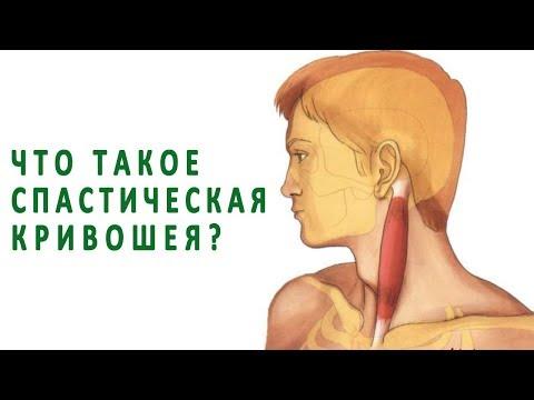 Что такое спастическая кривошея (цервикальная дистония)?