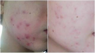 [ A savoir n°18  ] : Mon histoire avec l'acné et mes solutions !