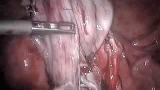 Pilonidal Sinus Treatment Without Surgery - Ayurvedic Kshar sura.