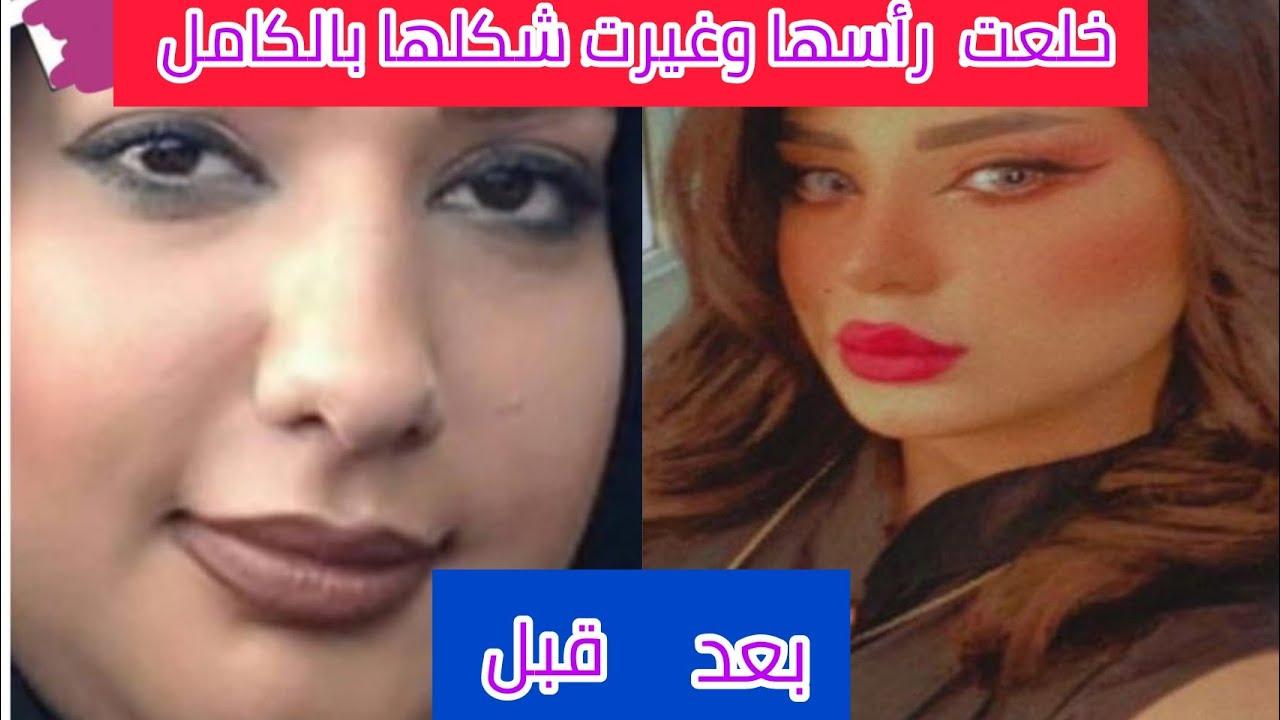 شاهد..صور صادمة للكويتية سارة الكندري قبل عمليات التجميل!قصت وجهها كله..