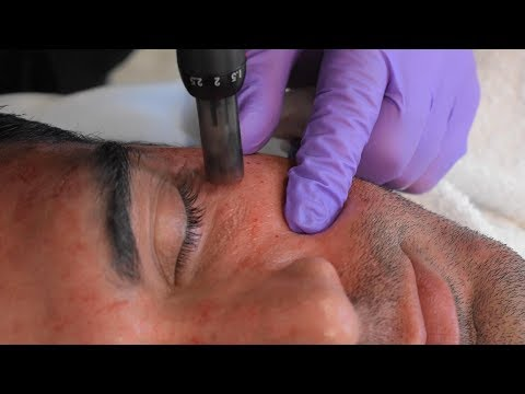 Rodiney Santiago Sees Dr. Kian for Sun Damage Treatment | Microneedling with PRF