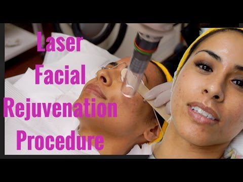 My First Laser Facial Rejuvenation Procedure - Rissrose2
