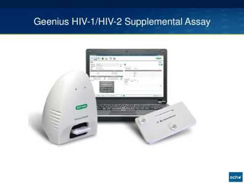 Diagnostic Tests for HIV