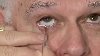 Bimatoprost-releasing ocular insert rests in the conjunctival fornix(Watch as a demonstration is given for insertion of the ocular insert. (Video courtesy of James D. Brandt, MD), 2015-12-17T21:12:52.000Z)