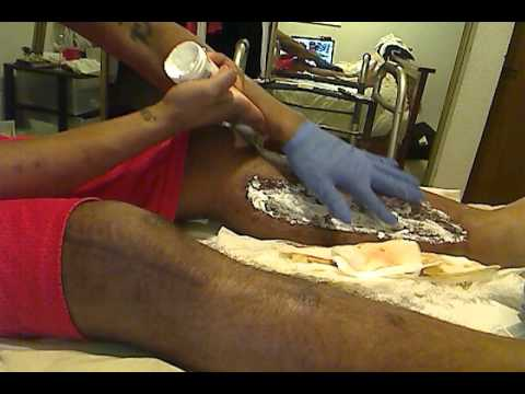 Dressing Change Skin Graft From Fasciotomy