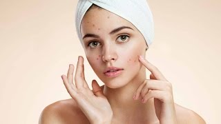 How to Get Rid of Pimples Naturally   Tamil Beauty Secrets