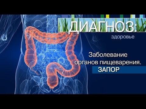 Запор - симптомы, лечение, профилактика, причины, что