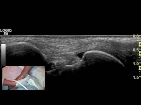 Ultrasound tutorial - Imaging of the deltoid ligament - YouTube