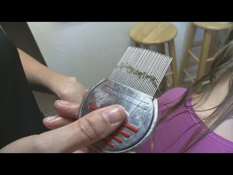 Super lice becomes a bigger problem in Albuquerque