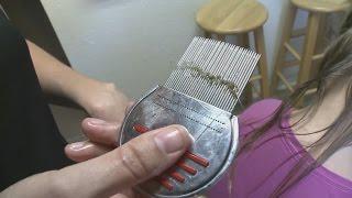 Super lice becomes a bigger problem in Albuquerque