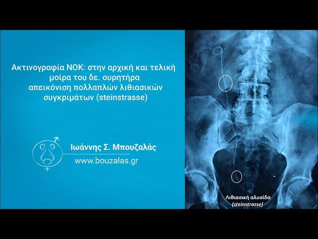 Λιθιασική αλυσίδα (steinstrasse): μια επιπλοκή της εξωσωματικής λιθοτριψίας