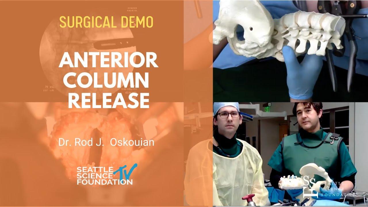 Download Live Demo: Anterior Column Release - Rod Oskouian, Jr, MD
