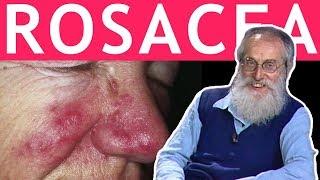 Dott. Mozzi: Acne rosacea
