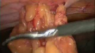 Laparoscopic Umbilical Hernia Repair