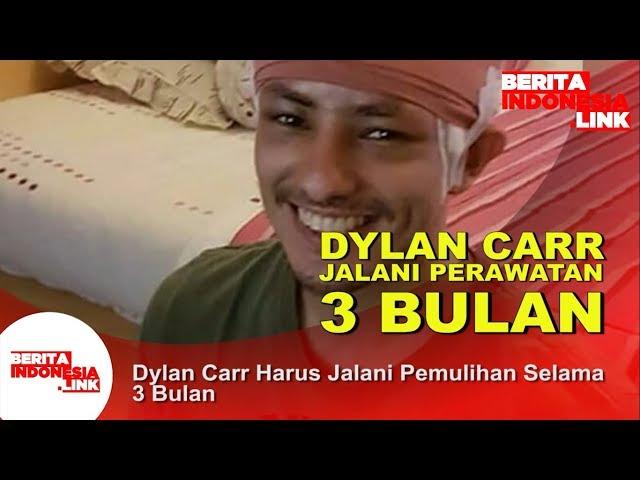 Dylan Carr Harus Jalani Pemulihan Selama 3 Bulan