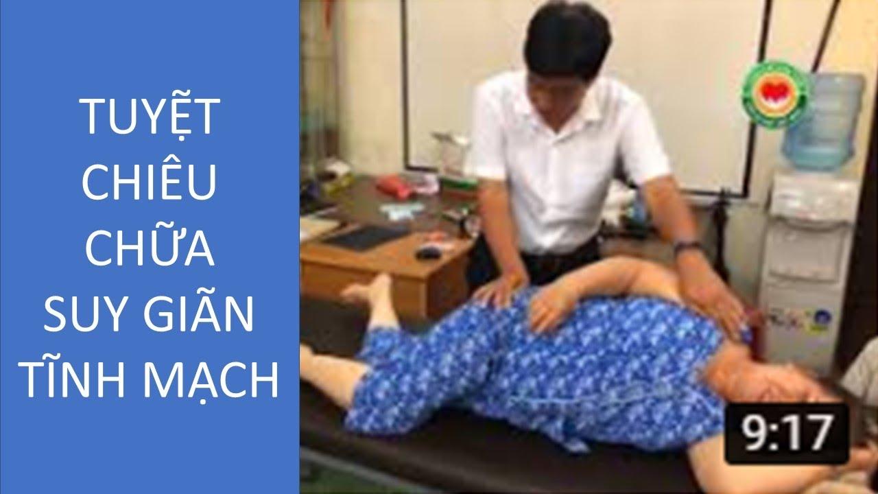 TUYỆT CHIÊU CHỮA SUY GIÃN TĨNH MẠCH, Danh y Đất Việt, Bác sĩ Dư Quang Châu 2017