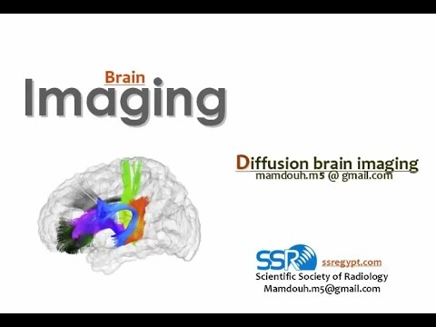Diffusion-weighted MR Imaging of the Brain - Prof. Dr. Mamdouh Mahfouz