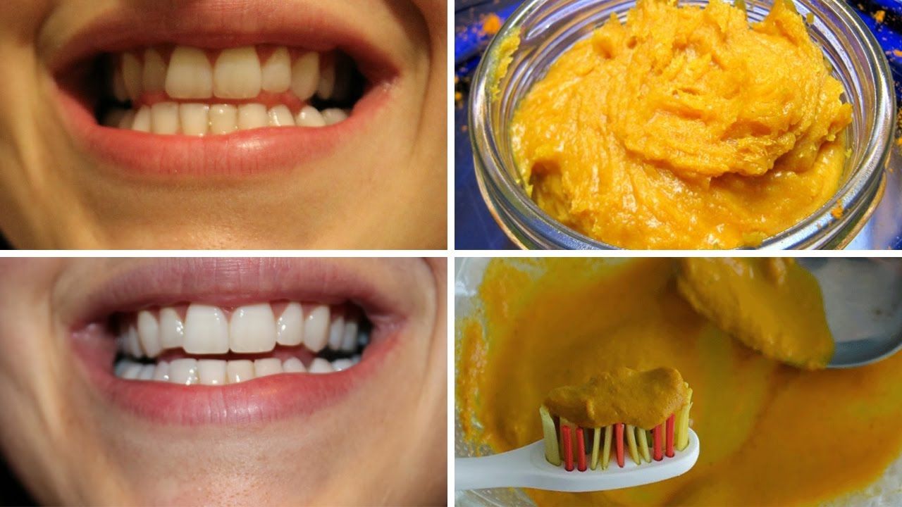 How To Naturally Whiten Your Teeth At Home Youtube