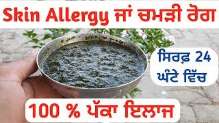 Skin Allergy ਜਾਂ ਚਮੜੀ ਰੋਗਾਂ ਦਾ 100 % ਪੱਕਾ ਦੇਸੀ ਇਲਾਜ   Best Home remedies for Skin Infections, Fungs