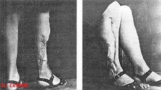 10 შემაძრწუნებელი ექსპერიმენტი რომელიც ნაცისტებმა ჩაატარეს
