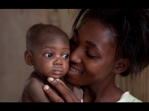 Under 5 child mortality on significant decline